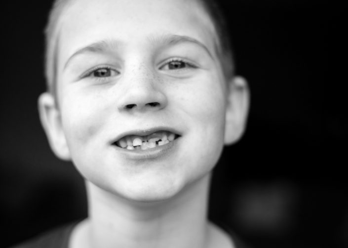 boy smiles to show his new teeth growing